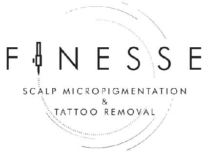 FINESSE Scalp Micropigmentation & Tattoo Removal